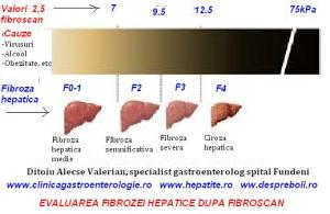fibroza-dupa-fibroscan