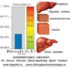 fibroza